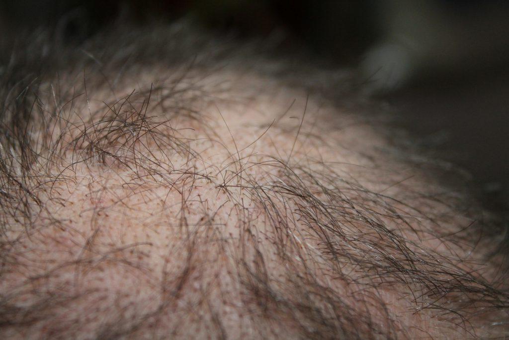 איך אפשר למנוע את- נשירת השיער